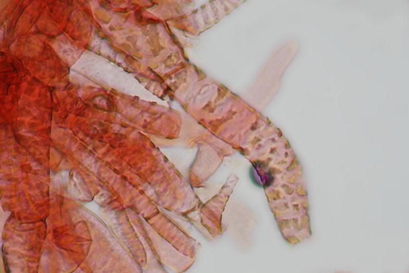 Boletus porosporus
